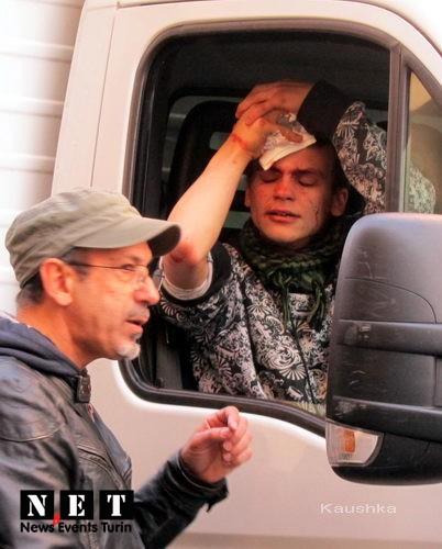 Пострадавший от итальянской полиции студент Турина