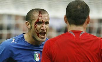 Футболист Ювентуса Кьелини Италия