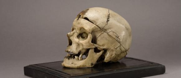 Чезаре Ломброзо череп и уголовная наследственность